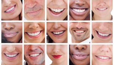Schöne Zähne (ästhetische Zahnmedizin)