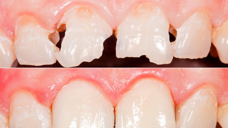 Zahnfüllung - Zahnarztpraxis Uster Bahnhof