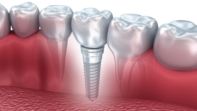Künstlicher Zahn / Zahnimplantat