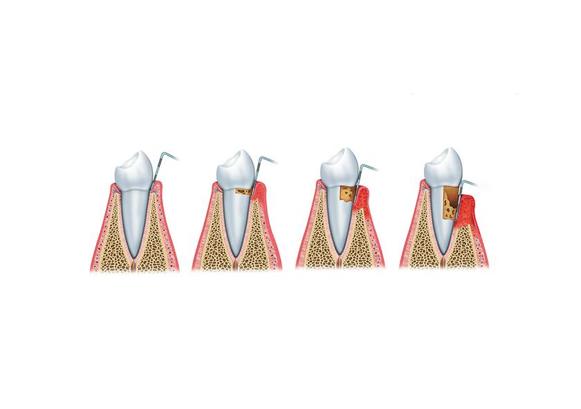 Parodontose / Parodontitis