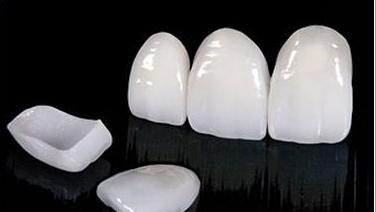 Weisse Zähne / Veneers
